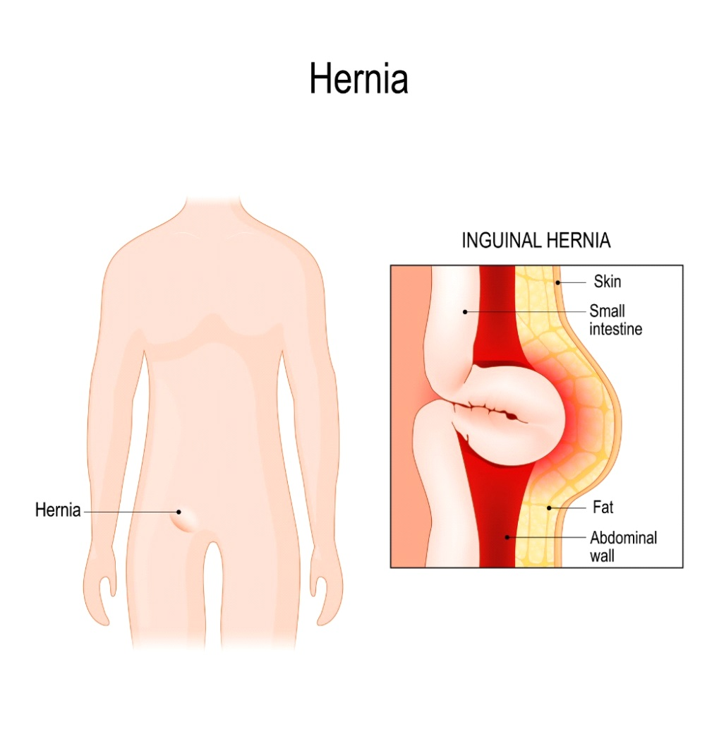 Peritoneal cancer hernia., Peritoneal cancer hernia
