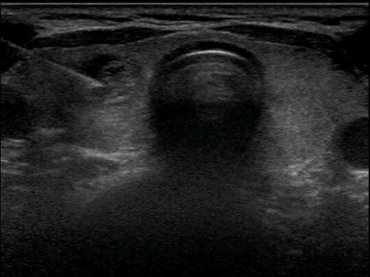 FNAC Thyroid