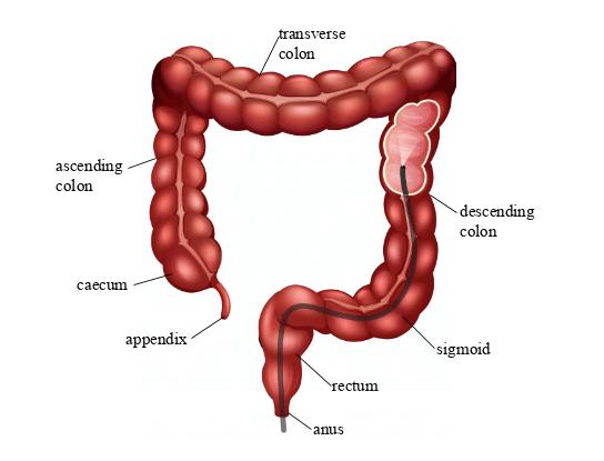 Screening colonoscopy