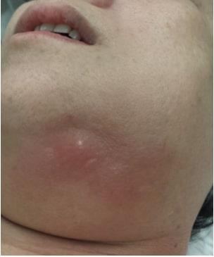 Submandibular gland abscess
