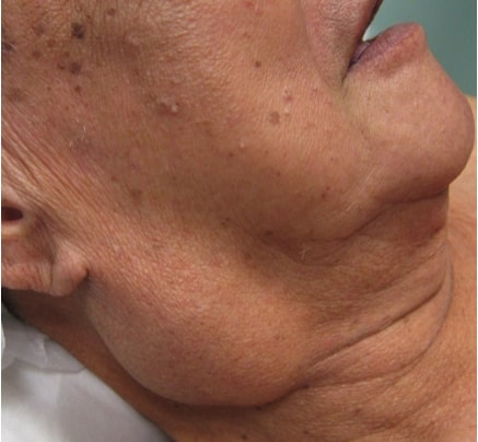 Parotid gland mass