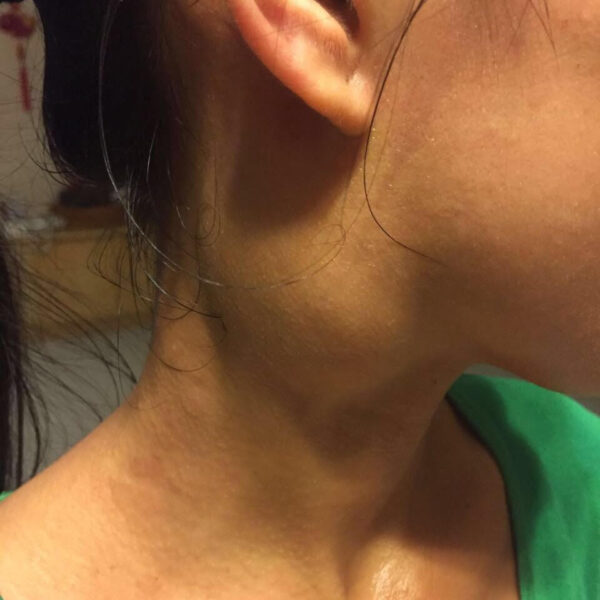 A recently discovered neck mass in a young female